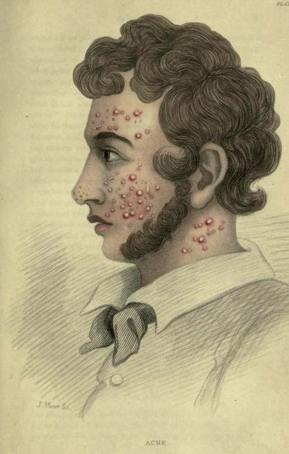 Acne. The skin, in health and disease. 1849. Source: archive.org