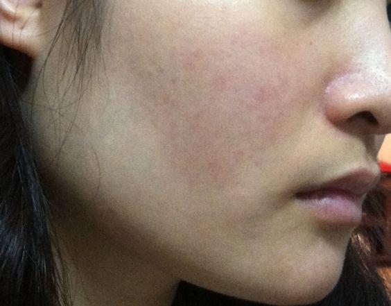Cách chữa bệnh viêm da dầu ở mặt bạn cần phải biết