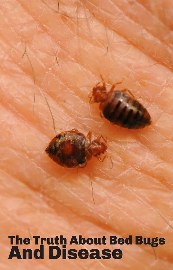 how to get of bed bug bites