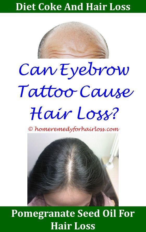 Mathew Mcconaugheys Hair Loss Treatment,Hair Loss is hair