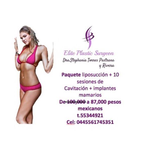 Paquete Liposuccion + 10 sesiones de cavitacion e implantes mamarios  Cirugía plástica México
