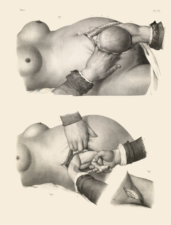 Two kinds of caesarian section. | Morbidly Beautiful Pictures Reveal The Horror Of Surgery In The Victorian Era: