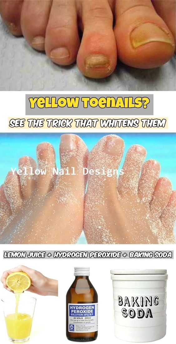 da62b6d220383f98baca0b83bc9a44ab - How To Get Rid Of Yellow Nails With Hydrogen Peroxide