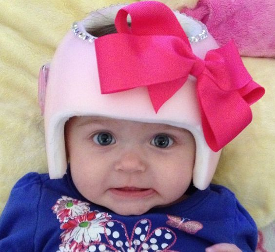 Plagiocephaly Helmet bows & flowers Decorate by EmmaSueBowtique