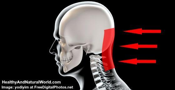 48++ Tension headache base of skull ideas