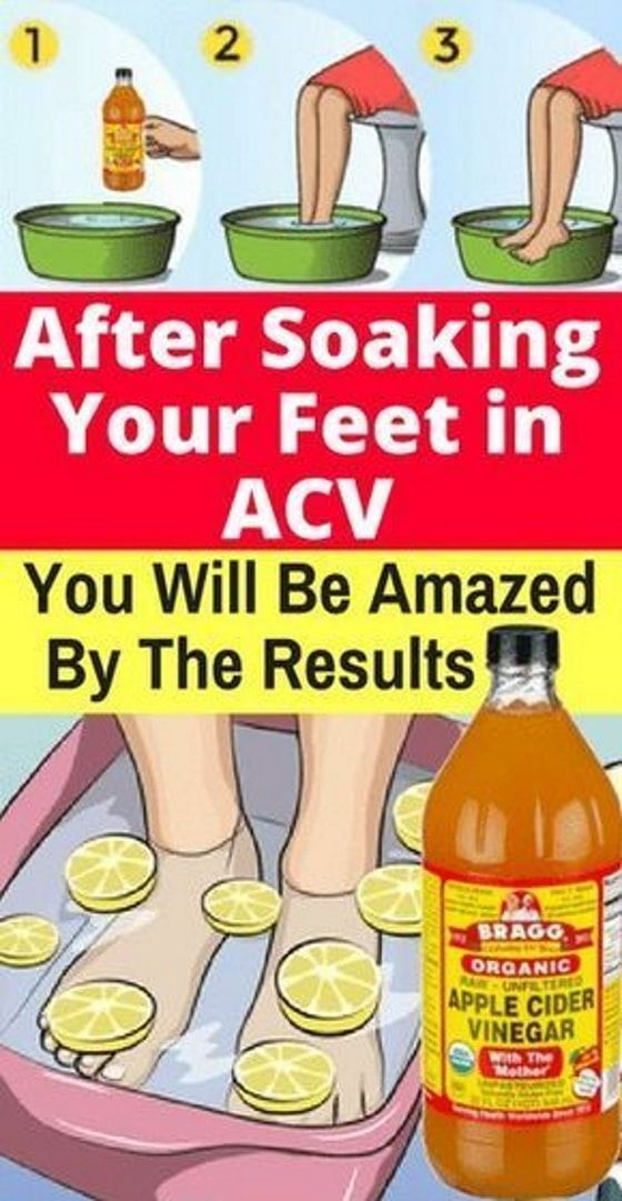 After Soaking Your Feet In Apple Cider Vinegar You Will Be Amazed By The Results Cider Vinegar Benefits Apple Cider Vinegar Detox Apple Cider Vinegar Remedies
