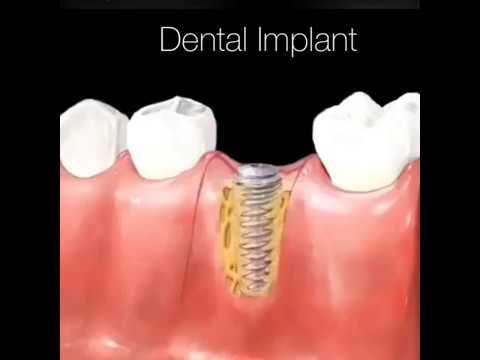 Dental Implant Procedure Youtube Cuidado Dental Cirugia