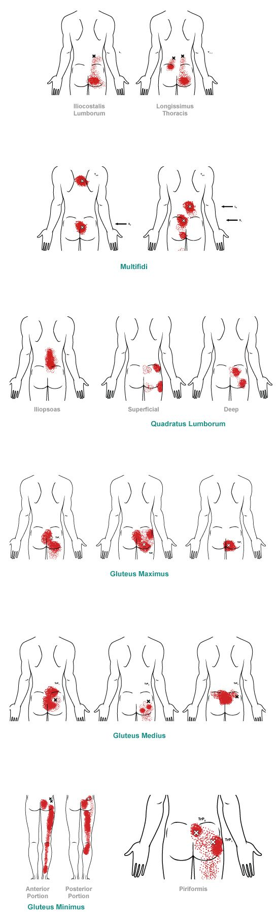 trigger point referral pain patterns for the low back