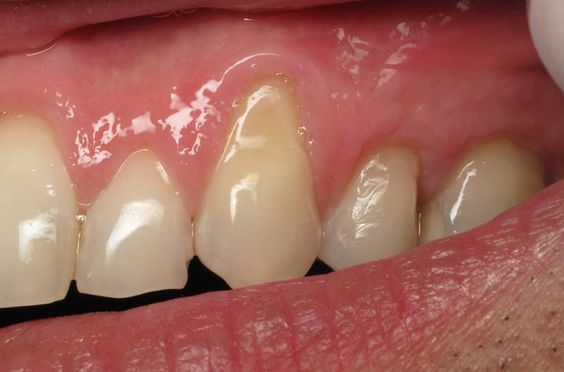 Receding Gums Natural Remedies And The Natural On Pinterest
