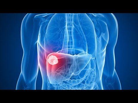 cum să elimini tumora grasă din organism arzătorul de grăsimi bea acasă