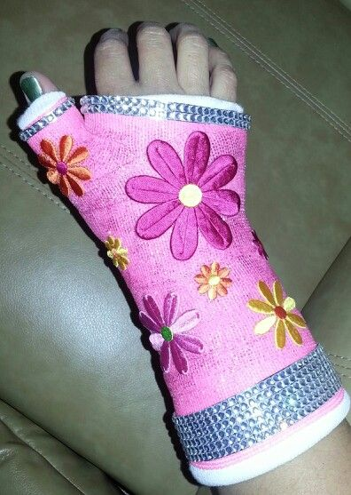 Pinterest the world s catalog of ideas for Arm cast decoration ideas