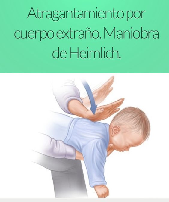 Child Saves Choking Mother By Performing Heimlich Maneuver: Atragantamiento En Bebes Posicion De Caballito Y Maniobra