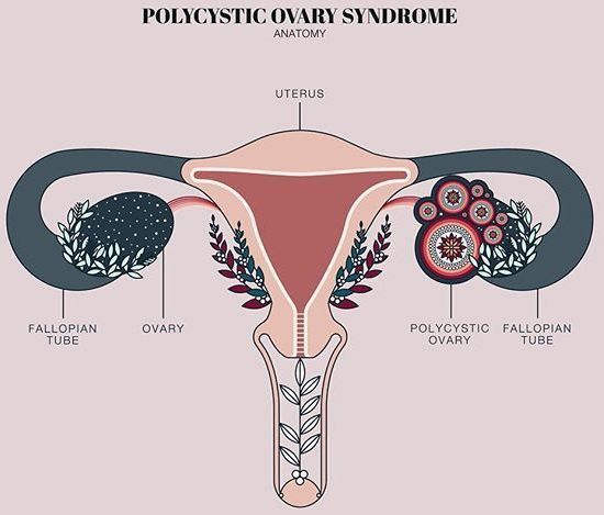 Poly cystic ovarian syndrome. PCOS for short. It is an imbalance of hormones in the female body... Read my experience with my PCOS, being a woman isn't easy