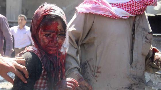 Das Assad-Regime lässt weiter die furchtbaren Fassbomben auf Aleppo fallen. Zu den Opfern gehören jedesmal Kinder. Dem verletzten Mädchen ist der Horror ins Gesicht geschrieben