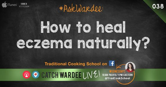 Linda K. asks, 'How can we heal my grandson's terrible eczema?' Watch, listen, or read to find out our family's story and how to heal eczema naturally.