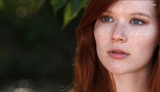Cách chăm sóc da bị tàn nhang hiệu quả an toàn