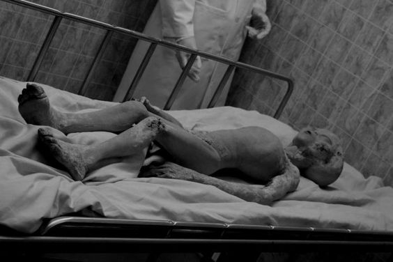 Autopsia de un alienigena en Roswel y archivos desclasificados Dbd5eb8dfbcf80bb48578de42fbefdc5