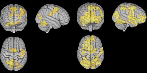 hjernene_meditasjon-700x350