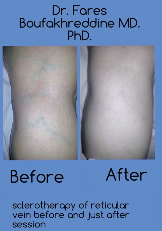 Sclerotherapy before and just after treatment.