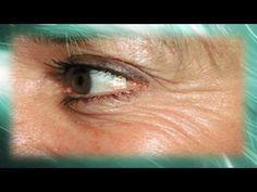 Mascarillas caseras para la cara faciles de hacer - Remedios caseros para las arrugas - http://solucionparaelacne.org/blog/mascarillas-caseras-para-la-cara-faciles-de-hacer-remedios-caseros-para-las-arrugas/
