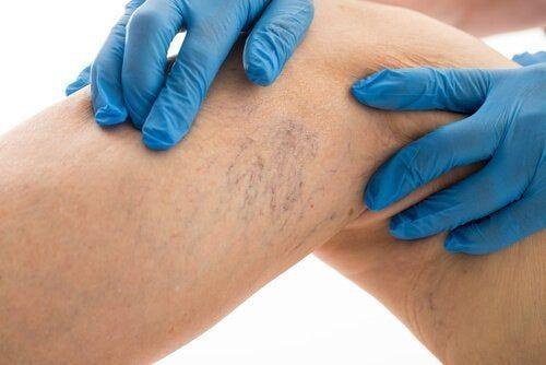 de la venele varicoase varicoză cum să-l tratezi prin remedii populare