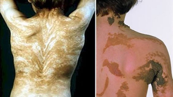 25 Extremely Bizarre Medical Disorders