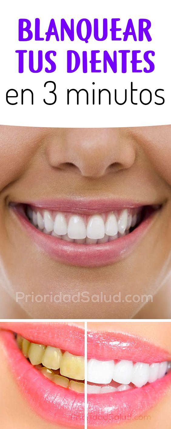 Como blanquean los dientes