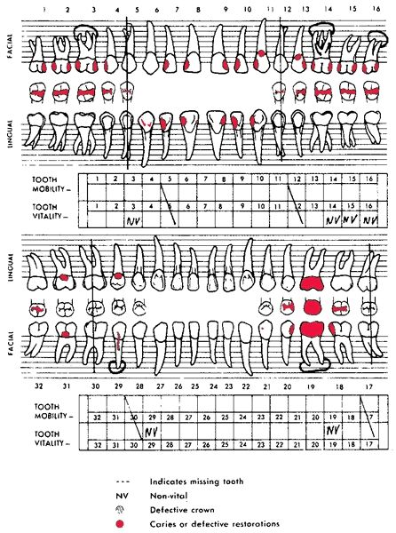 Dental Charting Symbols Tooth Chart Definition Of Tooth Chart Intended For Dental Charting Symbols 24166 Dental Charting Tooth Chart Dental Assistant Study