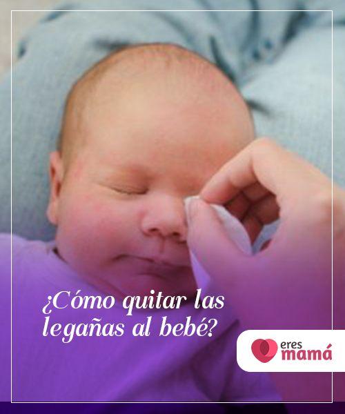 legañas bebe 2 meses
