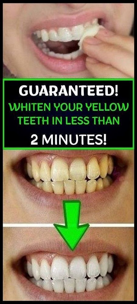 Yellow teeth are very embarrassing, and therefore, don't