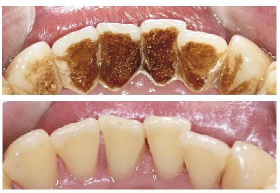 dd570c44405ffc9930d3cbf356782311 - How To Get Rid Of Black Stains On Your Teeth