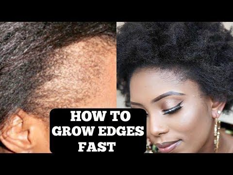 How To Grow Your Thin Bald Edges In 3 Days Guaranteed Youtube Thinning Edges Grow Edges Regrow Edges
