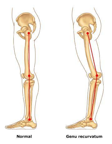 Image Result For Genu Recurvatum Pelvic Tilt Trigger Points Knee