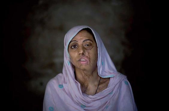 Alors que dans certains pays les droits de l'homme laissent à désirer, tenter d'évoquer les droits de la femme relèverait sûrement d'une ultime attaque envers ces peuples qui considèrent ces futures mères et épouses comme des moins que rien. Dans certaines régions du Pakistan, lorsqu'une femme s'oppose à un mariage forcé, demande le divorce ou se dispute simplement avec son mari, une sentence irréversible lui est réservée. Pour punir la femme d'avoir osé s'opposer au sexe que les faibles ...