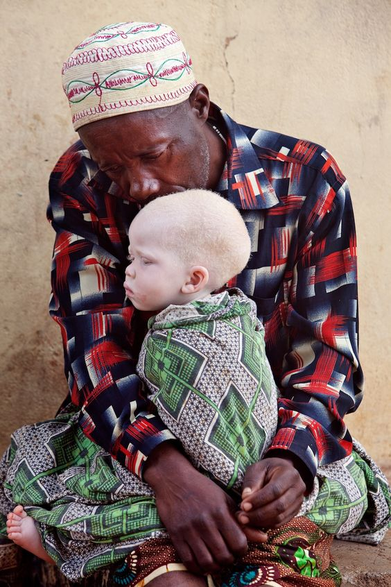 """Shining a Light on Tanzania's Albinos - Photographer Liron Shimoni The article's title is above, but I learned from the Asante Mariamu Foundation (http://www.asante-mariamu.org/) that many of those afflicted prefer the term """"persons with albinism"""""""
