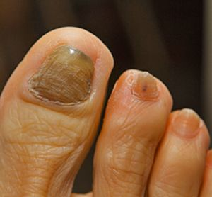 how to clean fungal infection at home