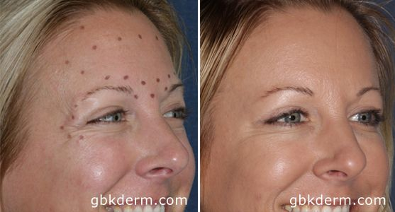 The Many Uses of Botox   San Diego Botox Specialists