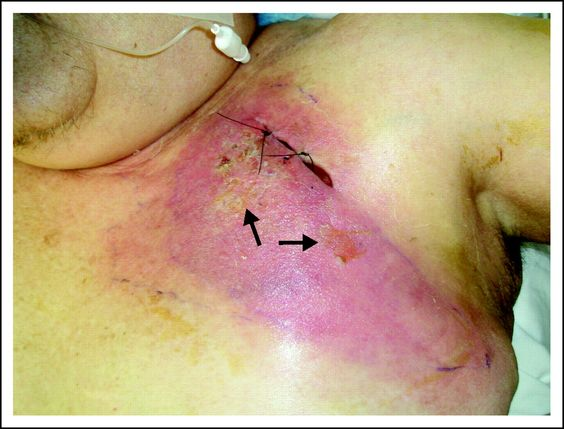 Recognition of a New Chemotherapeutic Vesicant: Trabectedin ...