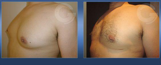 Ginecomastia. Caso real 4 (imagen lateral)  + info: http://drcruzgimeno.com/cirugia/reduccion-de-pecho-en-el-hombre-ginecomastia/ #ReducciónPechoHombre #Ginecomastia