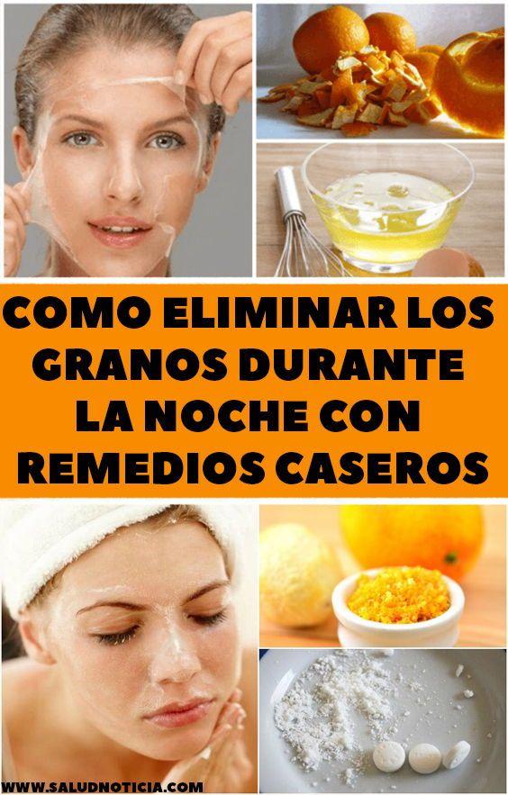 Como Eliminar Los Granos Durante La Noche Con Remedios Caseros Diy Beauty Recipes Beauty Recipe Diy Beauty