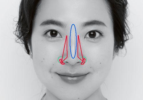 笑うと横に広がる存在感のある鼻がコンプレックス…スッキリ美人鼻に ...