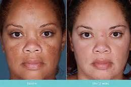 tretinoin cream 0.025 before and after photos - Bing