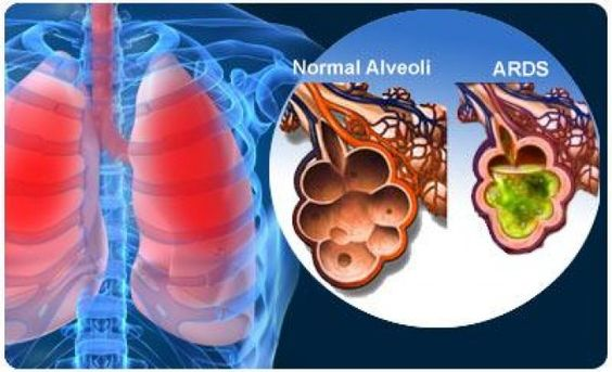 Acute Respiratory Distress Syndrome (ARDS)... Can be caused by many things (sepsis, pancreatitis, etc)... injury to the pulmonary capillary endothelium and alveolar epithelium that results in leakage of protein-rich fluid into the alveoli...Causes alveolar collapse