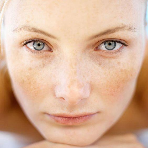 Nám da là gì và các loại nám da thường gặp -  chăm sóc da