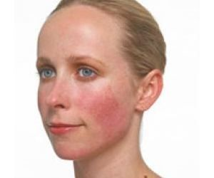 Most Powerful and Older Natural Tea Treatment For Rosacea - Red Pimples