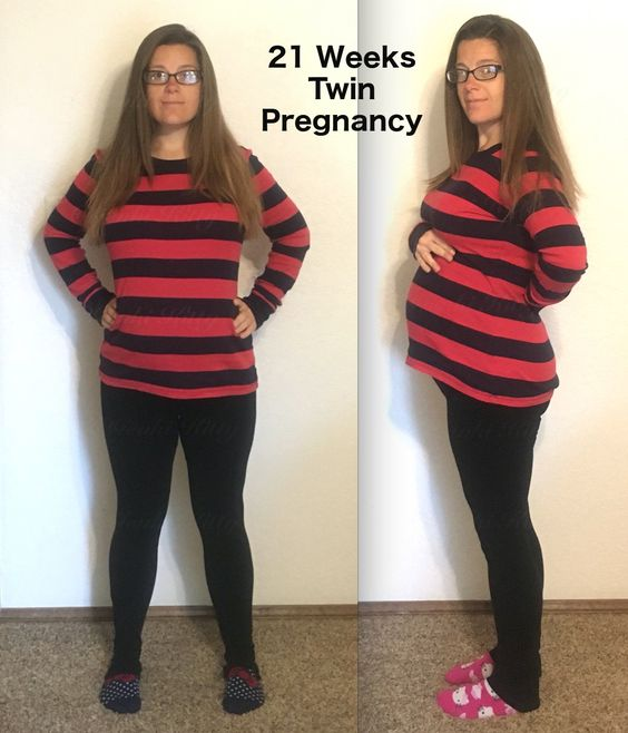 21 Weeks Twin Pregnancy Belly Bump Photo