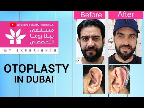 Bellaroma Hospital Otoplasty In Bella Roma Hospital Dubai تجميل الا Bella Roma Hospital Dubai