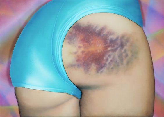 La beauté cosmique des bleus sur les fesses de filles qui font du roller - http://www.2tout2rien.fr/la-beaute-cosmique-des-bleus-sur-les-fesses-de-filles-qui-font-du-roller/