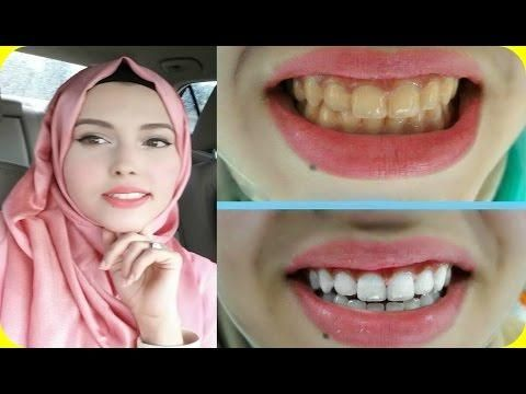 أقوى خلطة لتبييض الاسنان من أول استخدام لازم الكل يعرفها Youtube Resource Management System