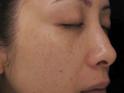 3 cách trị nám da mặt vùng má hiệu quả an toàn nhất hiện nay